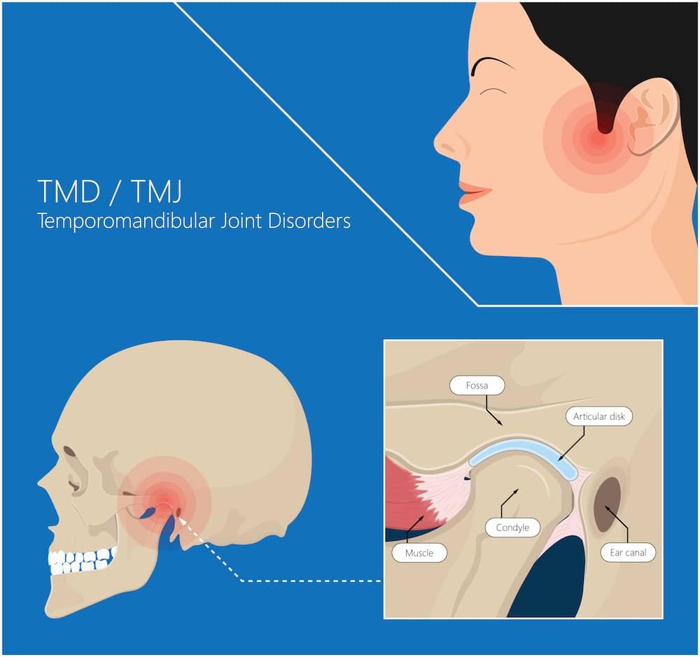 diagram of tmj pain